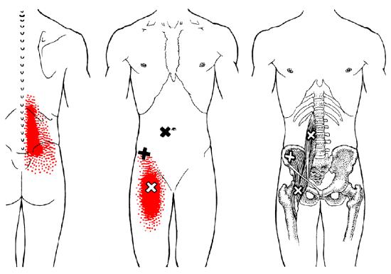 Problemas con el Psoas se traducirán en dolores de espalda baja, cadera e ingle.
